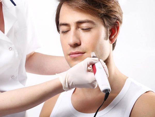 Mezoterapia mikroigłowa zabieg lda mężczyzn