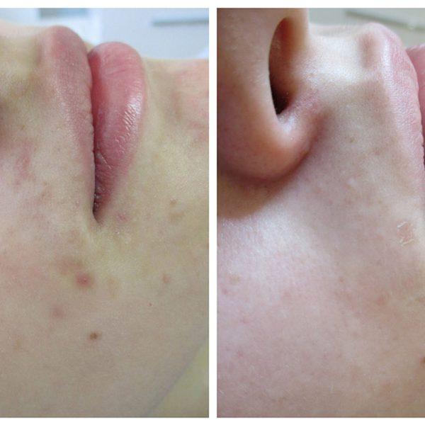 ZMianu skórne, okolica ust - efekt po 2 zabiegu