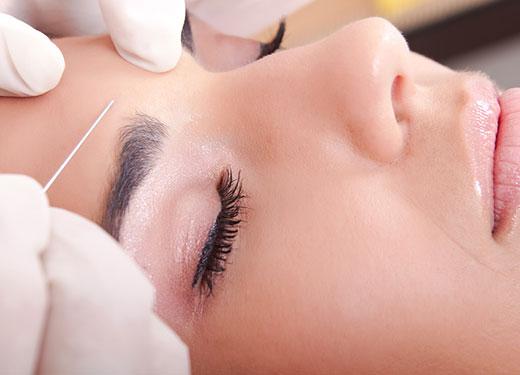 Karboksyterapia - zabiegi na zmarszczki, blizny i cellulit
