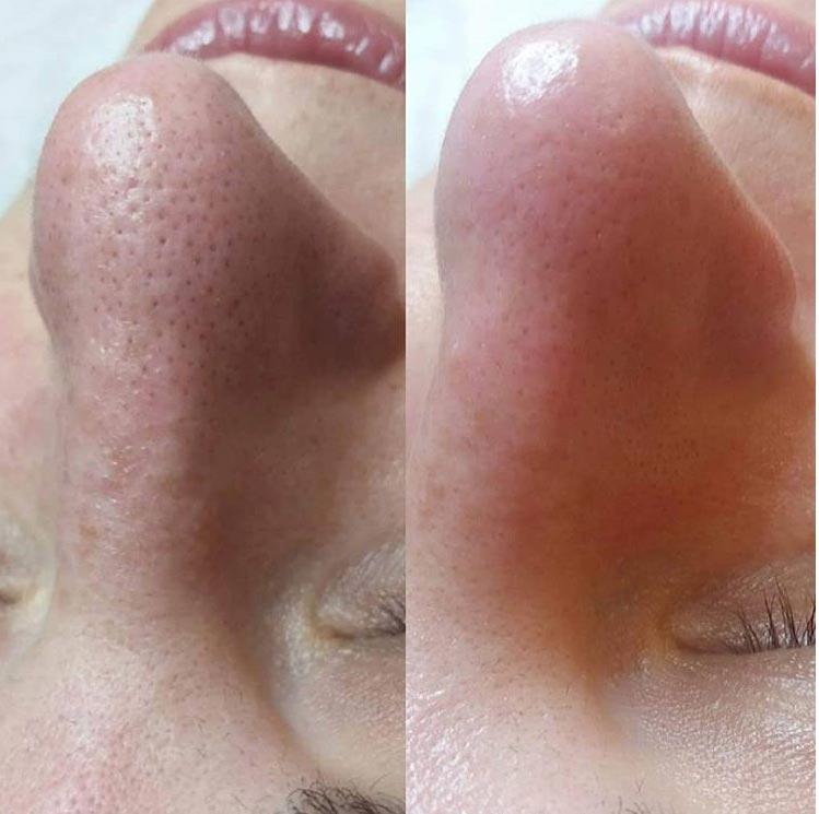 lifting i pielęgnacja twarzy