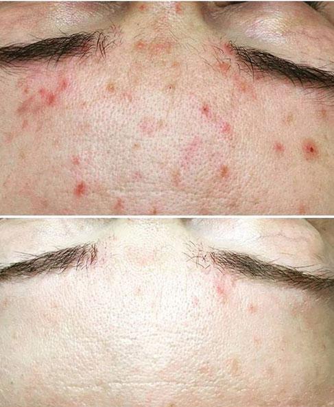 Kosmetyczne Leczenie trądziku kwasami