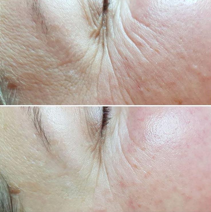 skóra po zabiegu