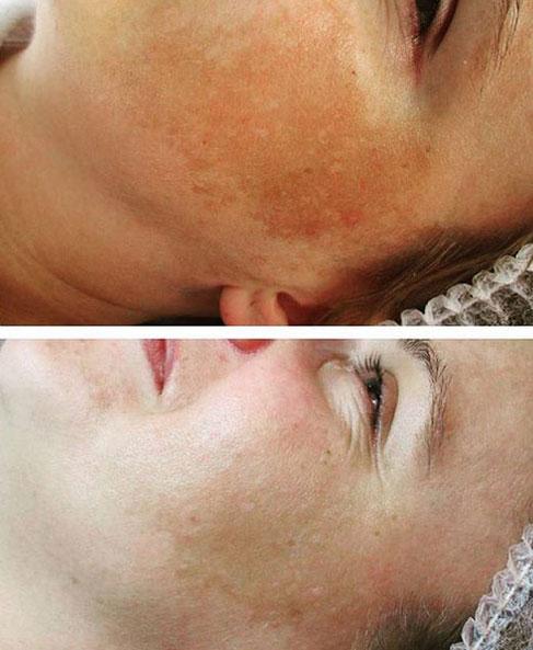 Gabinek kosmetyczny - efekty kwasów