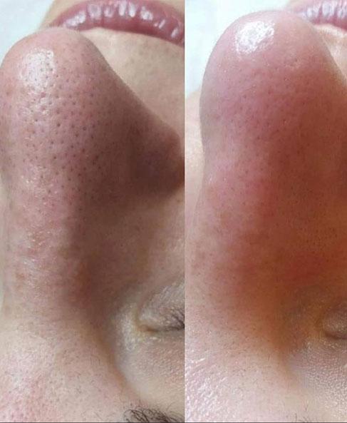 Oczyszczenie manualne nos