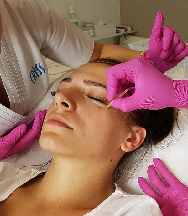 Karboksyterapia na Cienie pod oczami