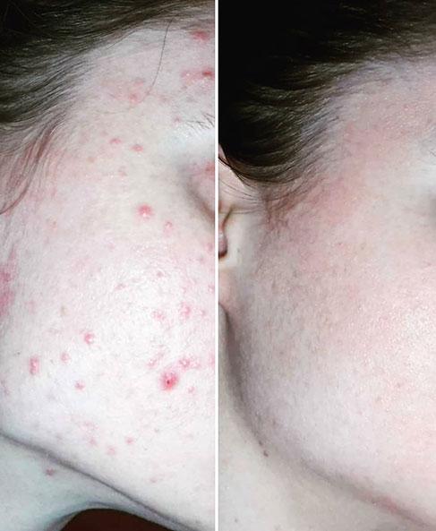 Leczenie trądziku kosmetycznego