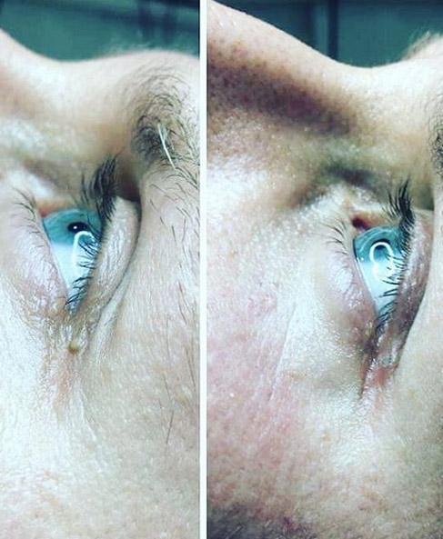 Usuwanie brodawek z oka