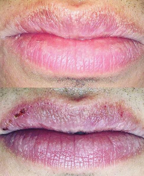 Medycyna estetyczna na usta