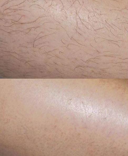 laser vectus - usuwanie owłosienia