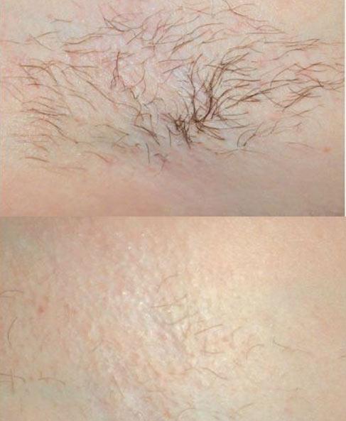 Zabiegi depilacji laserowej pod pachą