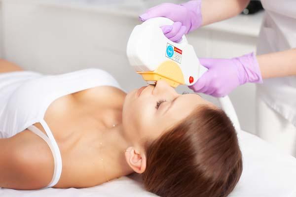 Seria zabiegów na twarz - depilacja laserowa