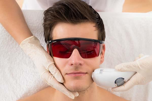 Męska depilacja laserem twarzy