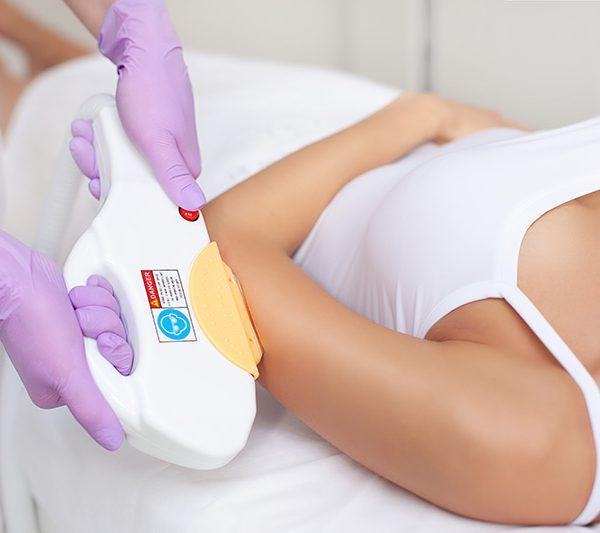 Efekty zabiegów depilacji laserowej ramion