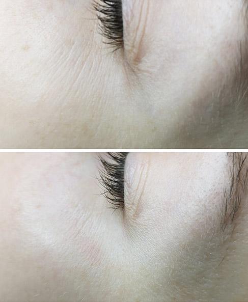 Nawilżanie okolic oczu przy pomocy kwasów